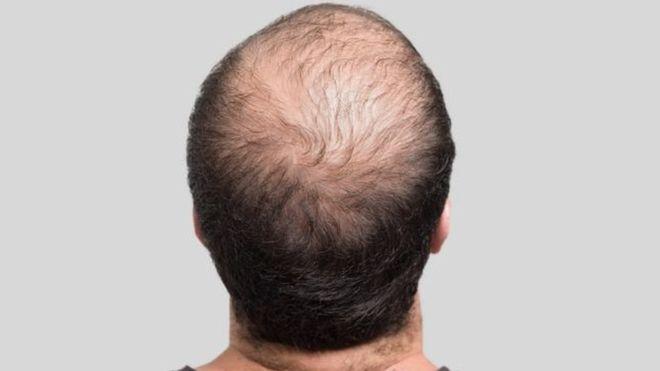 صورة انبات الشعر للرجال , ازاي نعالج تساقط الشعر للرجال