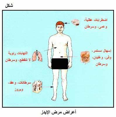 صورة ما هو مرض hiv , مرض الايدز اعراضه واسبابه