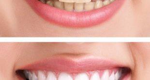 انواع تبييض الاسنان , افضل نوع لتبيض الاسنان