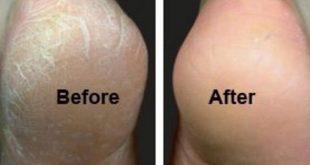 صورة ازالة تشققات القدمين , اتخلصي من تشققات القدمين بكل سهوله
