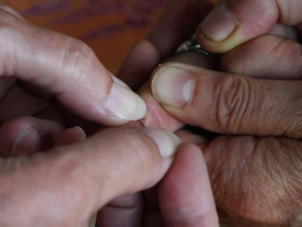علاج داحس الظفر تقليل الام الظفر المدوحس و علاجه منزليا طقطقه