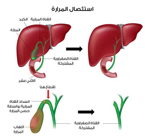 صورة عملية جراحية للمرارة , طرق استئصال الكيس المراري