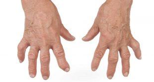 صورة علاج مرض الروماتويد , ما هو الروماتيد وتاثيره على الجسم