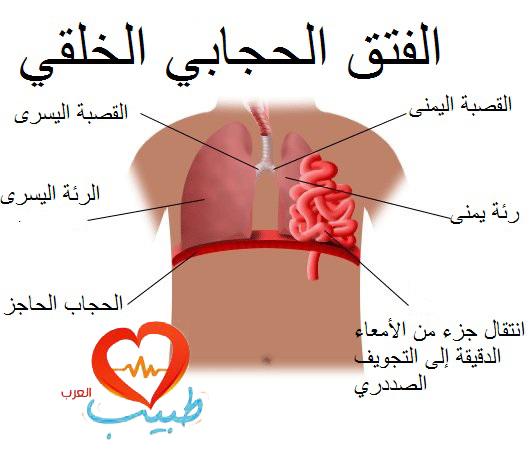صورة فتق الحجاب الحاجز , اعراض واسباب فتق الحجاب الحاجز