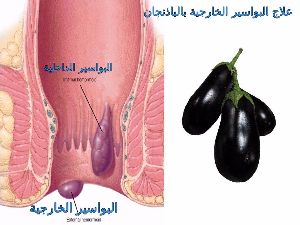 صورة علاج البواسير بالباذنجان , كيفيه استخدام الباذنجان في علاج البواسير