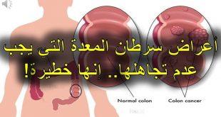 اعراض سرطان المعدة , الاشياء التي قد تؤدي الى اصابه المعدة بسرطان