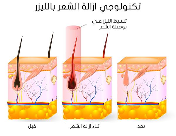 صورة الليزر للمنطقه الحساسه , استخدام الليزر في ازاله الشعر