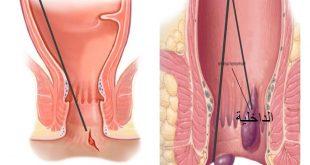 صورة ماهي اسباب البواسير , العوامل التي تؤدي الى الاصابه بالبواسير