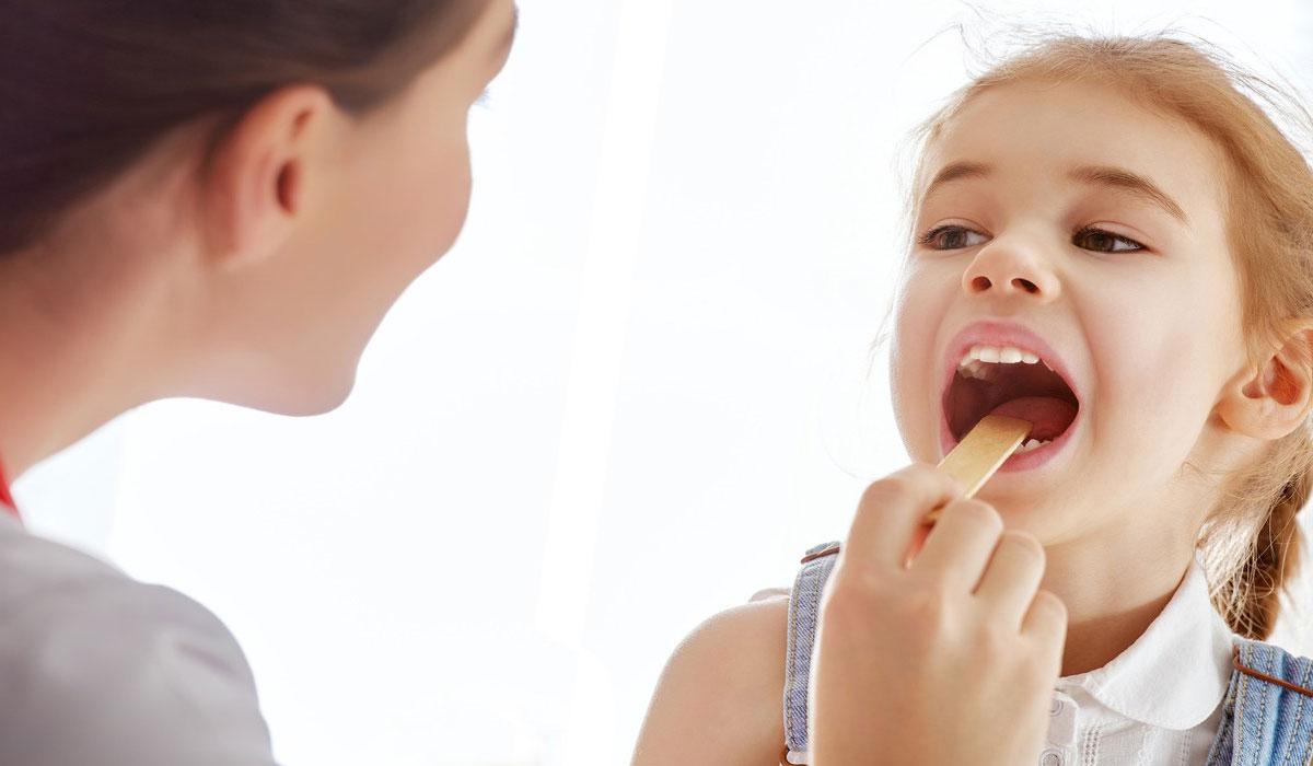 صورة علاج التهاب اللوز للاطفال , اسرع علاجات منزليه لالتهاب اللوز للاطفال