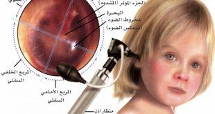 اسباب التهاب الاذن عند الرضع , لماذا تلتهب اذن الرضيع