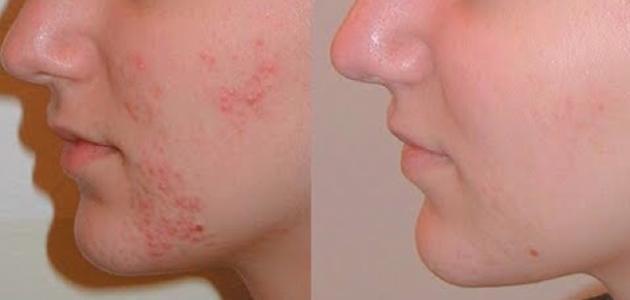 صورة كريم لازالة اثار الحبوب من الوجه نهائيا , استخدام هذا الكريم يزيل اثار حبوب الوجه 3952 2