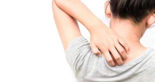 صورة ماهي اسباب حكة الجسم , اكثر الاسباب شيوعا لحكه الجسم