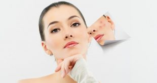صورة علاج بقع الوجه , ازاله البقع الداكنه من البشره