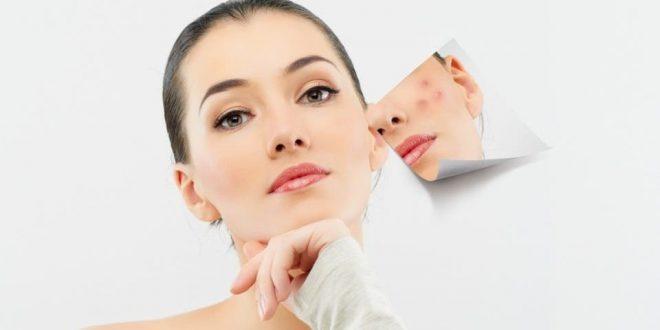 صور علاج بقع الوجه , ازاله البقع الداكنه من البشره