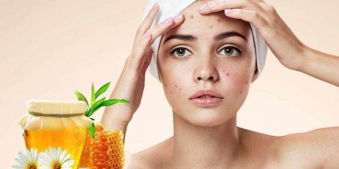صور علاج حب الشباب للبشرة الدهنية الحساسة , علاج مشاكل البشره الدهنيه باقل المكونات