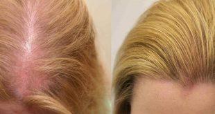صورة خلطة لانبات الشعر , اهم الطرق لزيادة نمو الشعر