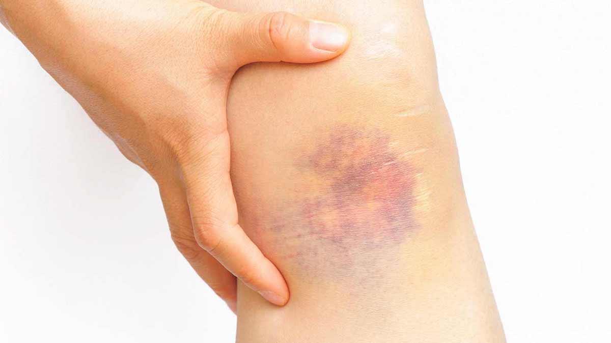 صورة ما هو مرض اللوكيميا , كيف تعرف مريض اللوكيميا وما هى طرق العلاج
