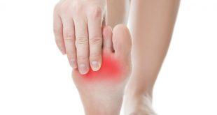 صورة اعراض التهاب الاعصاب في القدم , اهم علامات التى تدل على التهاب الاعصاب للقدم