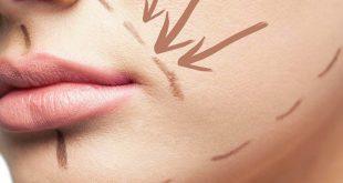 صورة علاج الخطين حول الفم , علاج هيقضي عليها نهائي
