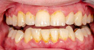 صورة ازالة الجير من الاسنان , وصفة خطيرة وسهلة جدا