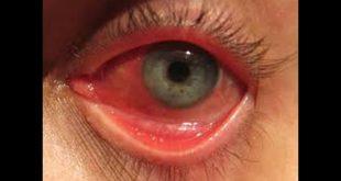 علاج احمرار العين في المنزل , وصفة جميلة ستخلصك منه من اول مرة