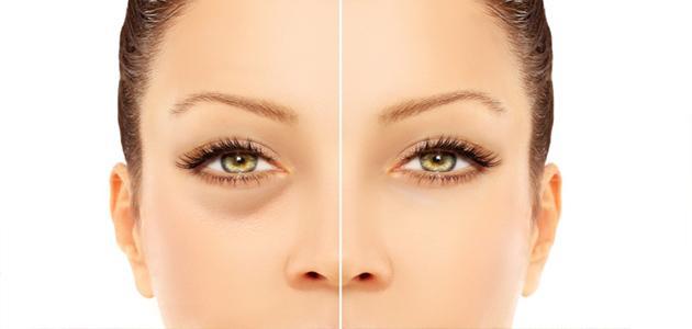 صورة التخلص من انتفاخ العين , اقوي الطرق الفعاله للقضاء علي انتفاخ العين