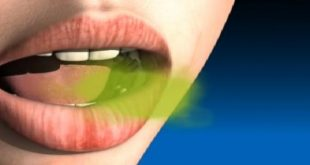 اسباب رائحة الفم الكريهة , لا تخجل من نفسك بعد الان
