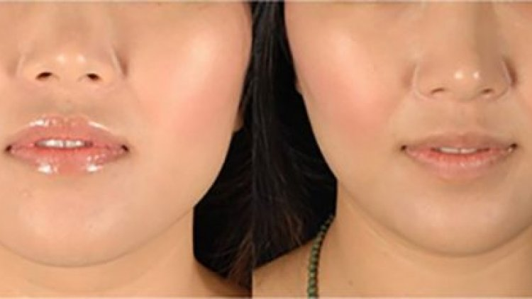 صورة اروع الاسرار لوجه مثالي جداً , كيفية تخسيس الوجه