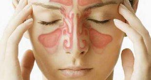 صورة هل تعاني من الزكام من الممكن ان يكون الجيوب الانفيه تعرف علي اعراضها , اعراض الجيوب الانفية