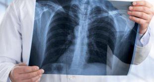 صورة هل تحس بوجع في الصدر اعرف عن هذا الالتهاب , اعراض التهاب القفص الصدري
