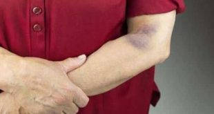 صورة هل تعاني من نقص الصفائح الدموية شاهد العلاج , علاج نقص الصفائح الدموية