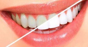 اجعل اسنانك زي التلج , طريقة سهلة لتبييض الاسنان